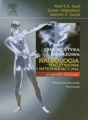 Radiologia naczyniowa i interwencyjna