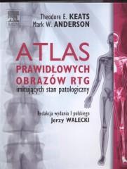 Atlas prawidłowych  obrazów RTG imitujących stan patologiczny